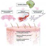 Centella asiática y celulitis