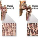 Osteoporosis: huesos frágiles