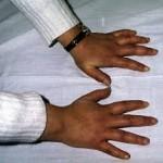 Enfermedad mixta del tejido conjuntivo
