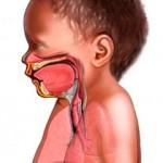 Distrés respiratorio neonatal