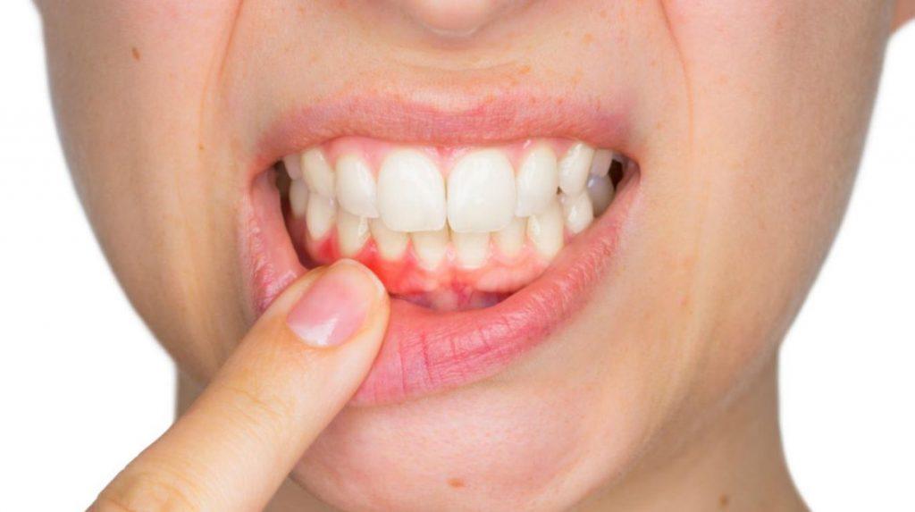 puntos blancos en la boca de un bebe