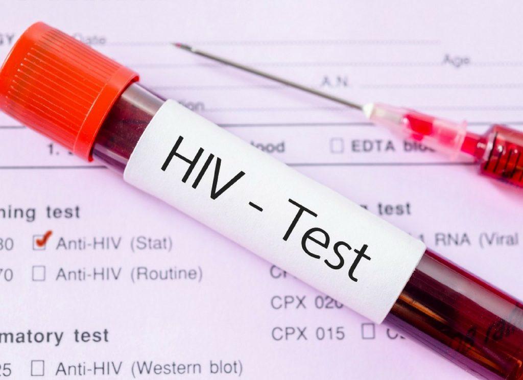 se contagia el sida por admitir del mismo vaso