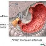 Estenosis hipertrófica del píloro